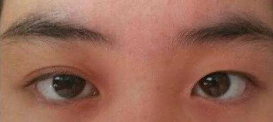 这么明显的大小眼,靠割双眼皮能不能矫正不对称的双眼