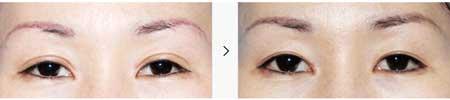 2.十分厚实,水肿不容易消退的双眼皮(香肠线条)