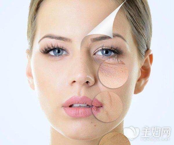 埋线隆鼻术前术后需注意事项