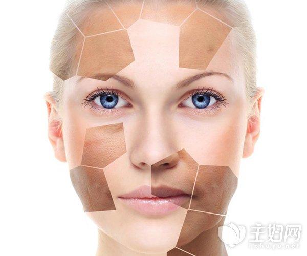 脸上长斑怎么保养皮肤