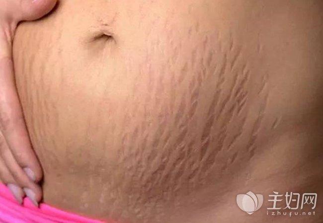 产后妊娠纹多伟德betvictor 减少妊娠纹的方法