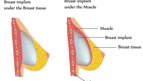 玻尿酸自白书 和肉毒素比谁除皱更强?