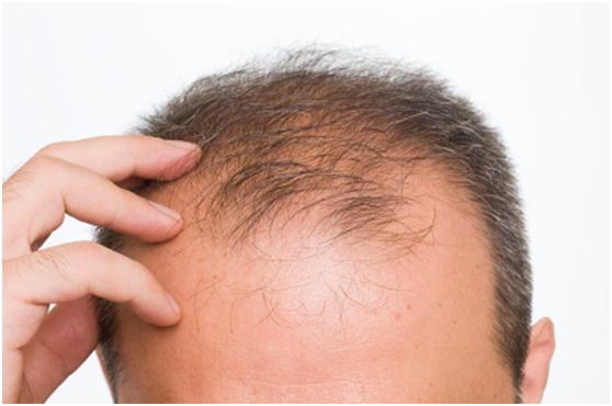 夏日祭|夏日常见的3大头皮问题,脱发怎么办 !