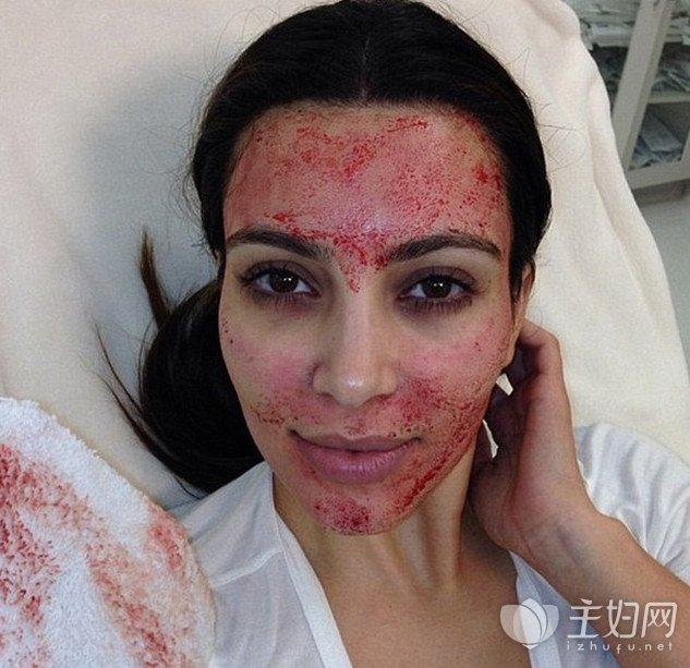 输血美容方法真的安全 这是方法可以确保人性化吗?-1.jpg