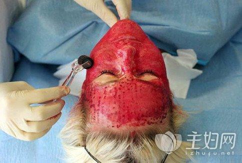 输血美容方法真的安全 这是方法可以确保人性化吗?-2.jpg